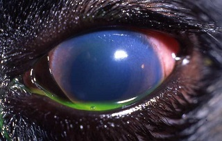 Informative image: glaucoma